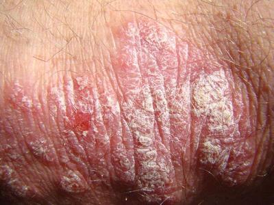 点滴型银屑病用什么药可以彻底治疗